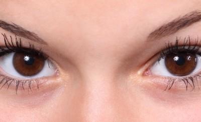voor en nadelen ogen laten laseren